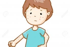 Bệnh sởi và những điều ba mẹ cần biết